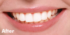 crest-3d-white-after-teeth-whitening