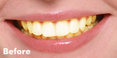 crest-3d-white-before-teeth-whitening